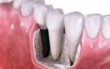 implanturi dentare in Bucuresti