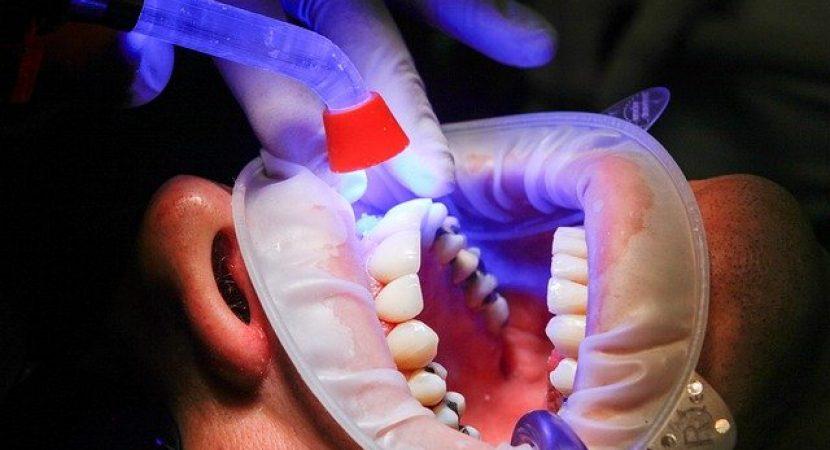 infectie implant dentar