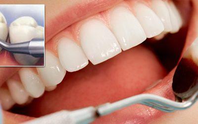 clinicii dentare Elveto Dent